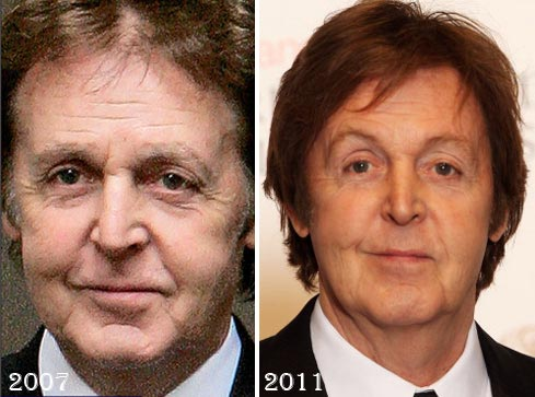 Paul-McCartney-Plastic-Surgery